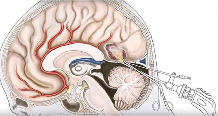 ketyhole-brain-surgery3
