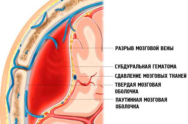 intracranial-hemorrhage-350