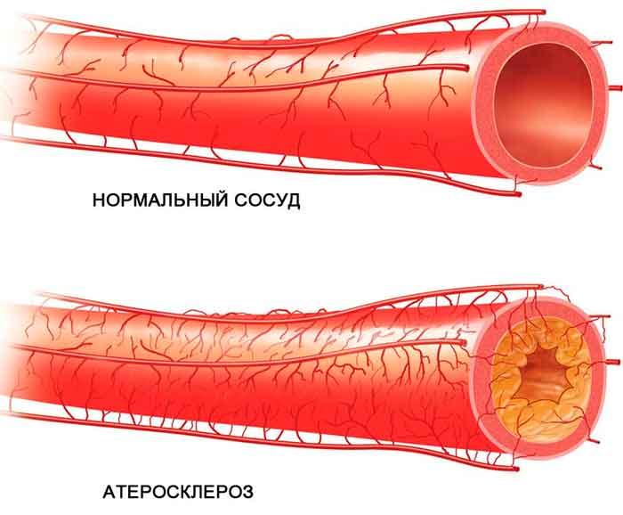 ateroskleroz-sosudov