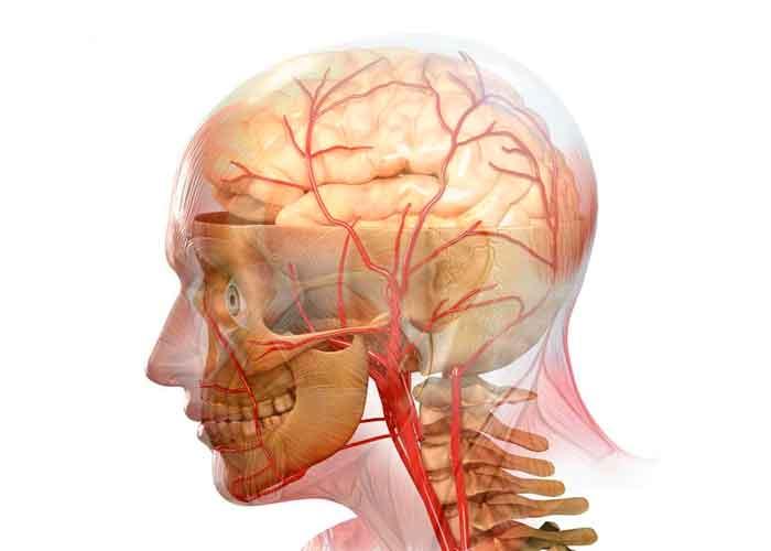 Атеросклероз сосудов головного мозга: лечение и профилактика