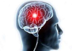 Что это такое лейкоареоз головного мозга