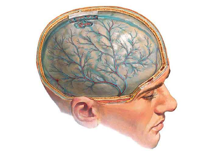 Киста головного мозга опасно ли это