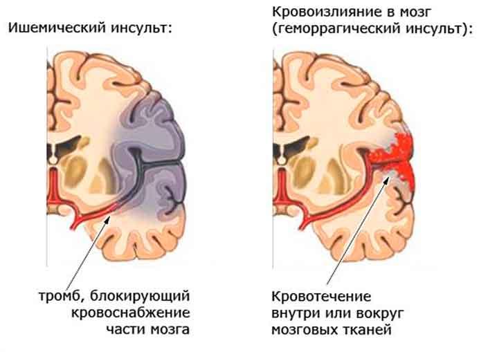narushenie-krovoobrascheniya