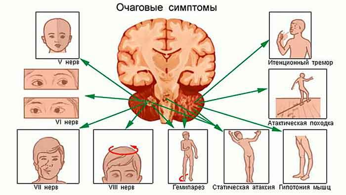 opukholi-stvola-mozga-251