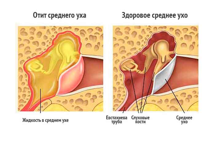 Болит голова за ухом - справа, слева, с одной стороны