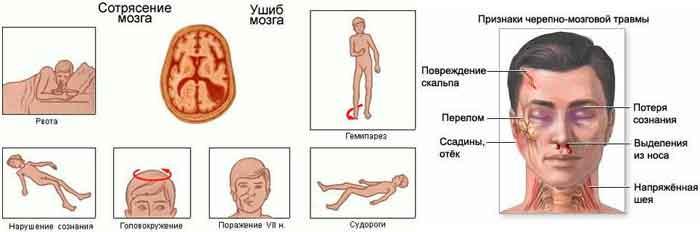 priznaki-sotryasenie-golovnogo-mozga