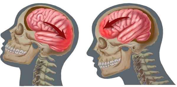 sotrasenie-mozga2-252