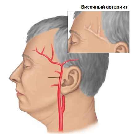temporal-arthritis-338