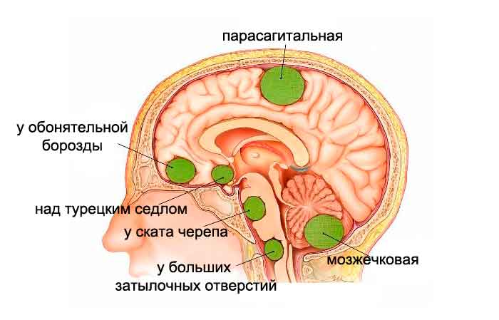 types-of-meningiomas02-251