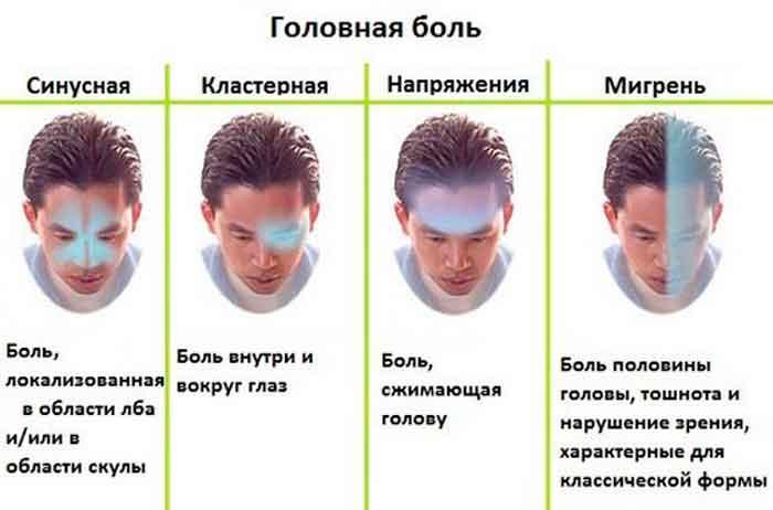 vidi_golovnoy_boli-350