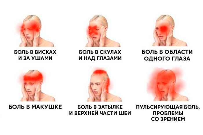 vidy-golovnoj-boli-250
