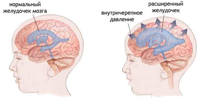 vnutricherepnoe_davlenie-_simptomy_i_lechenie