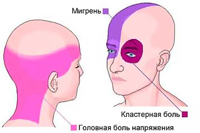 мигрень, кластерные боли, напряжение