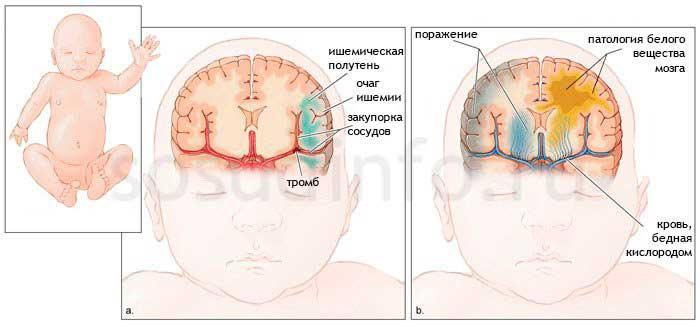 encefalopatiya-u-novorozhdennyh-546