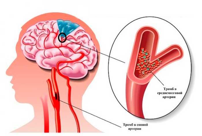 Ишемия головного мозга: симптомы, причины, лечение