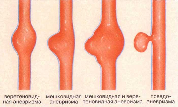 klasifikaciya-anevrizmy