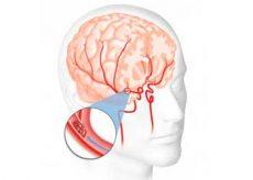 Что такое энцелофапатия головного мозга?