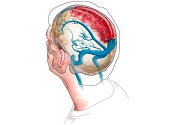 Признаки нарушения венозного оттока головного мозга