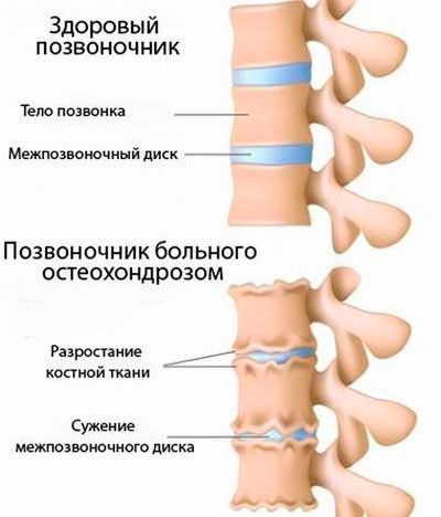 Причины постоянного головокружения и тошноты