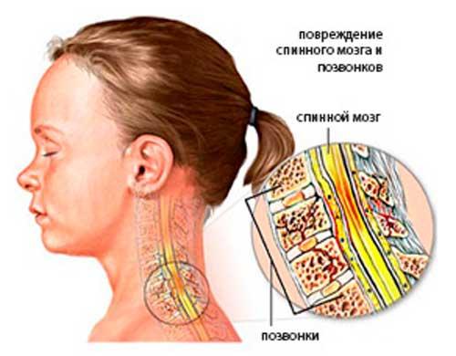 sheynaya-migren