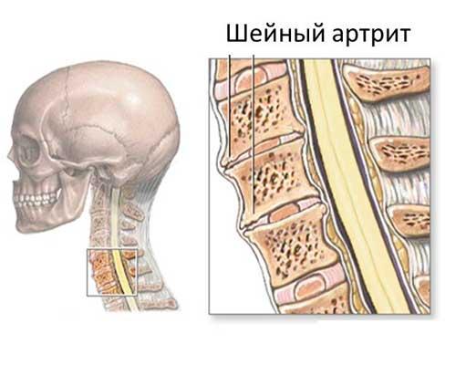 Шейный артрит