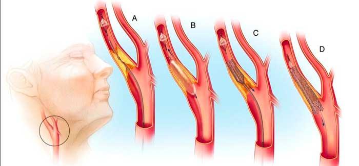 stenirovanie-sonnoy-arterii