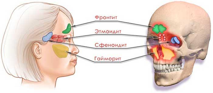 При остеохондрозе потеет голова
