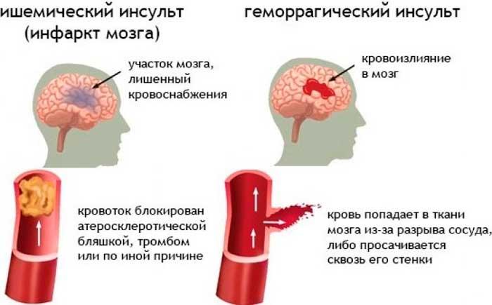 Что делать, если кружится голова и тошнит: иногда слабость