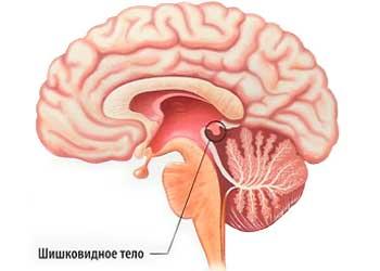 Лечение шишковидной железы головного мозга