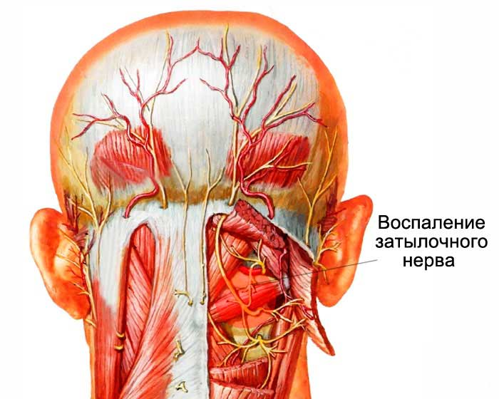 У ребенка болит голова в области лба (в лобной части)
