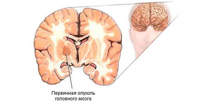 Первичная опухоль головного мозга