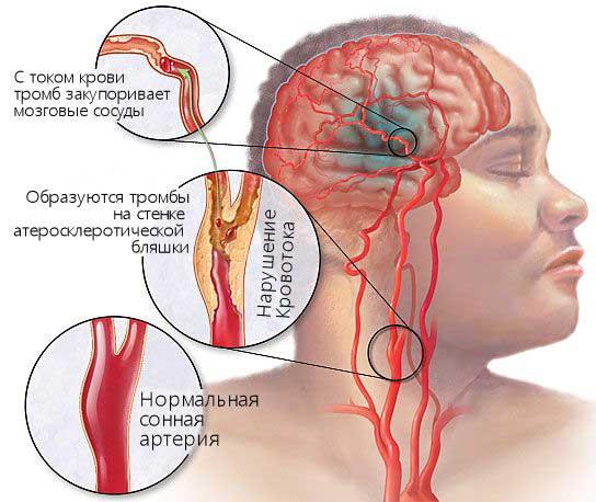сосудистые заболевания головного мозга