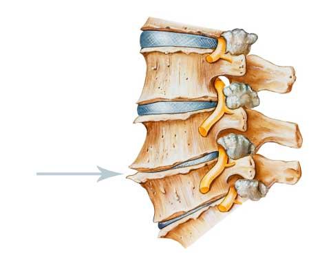 Причины и лечение боли шеи при повороте головы