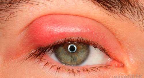 фурункул глаза