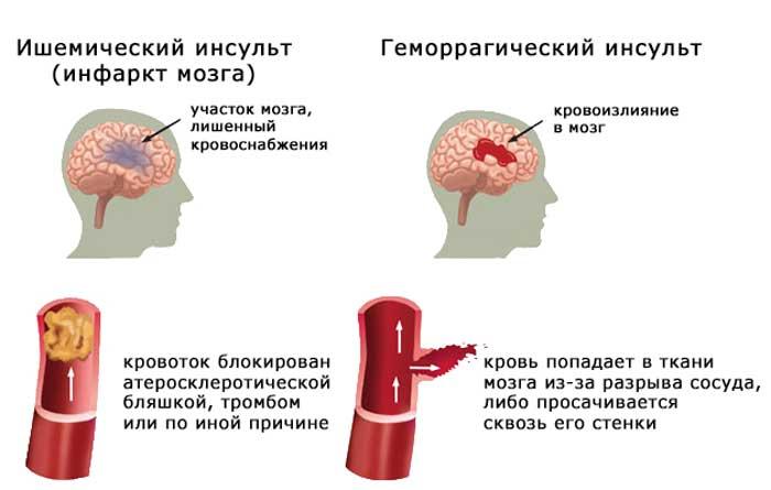 Почему болит голова каждый день: причины, лечение