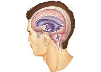 Умеренно выраженная наружная заместительная гидроцефалия головного мозга