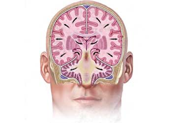 Почему происходит отек головного мозга