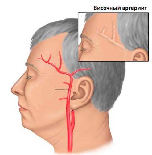 Боль в голове при наклоне вниз: причины, лечение