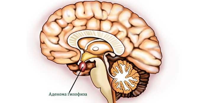 Аденома гипофиза головного мозга: последствия, причины, лечение