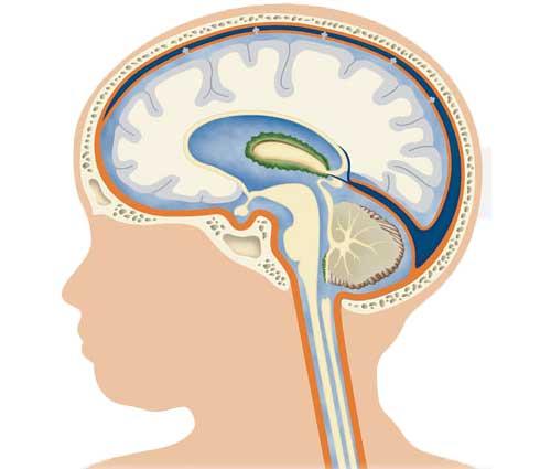 Смешанная гидроцефалия головного мозга у детей
