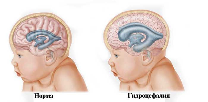 Гидроцефалия головного мозга у детей