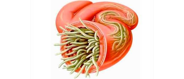 инфекции при беременности
