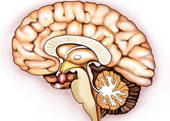 Аденома гипофиза головного мозга последствия