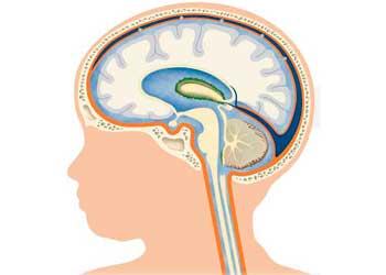 Расширение желудочков головного мозга у новорожденных и грудничков, увеличение и асимметрия, норма