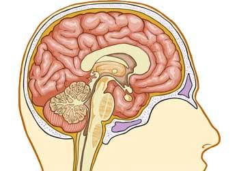 Умеренно выраженная наружная гидроцефалия и ее проявления