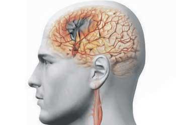 Болит голова сужены сосуды