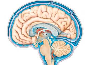 Наружная заместительная гидроцефалия головного мозга последствия