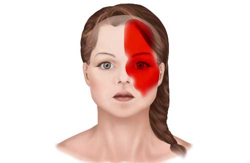 Почему болит голова в одной точке