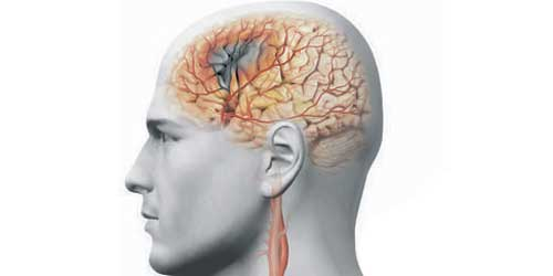 стеноз сосудов головного мозга