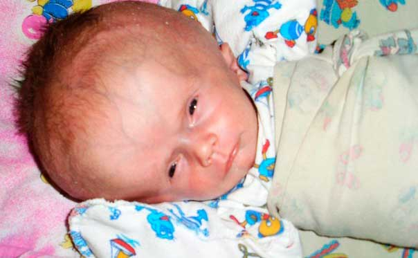 водянка у младенца